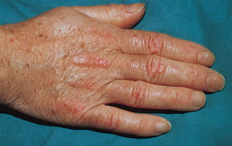 Amyopathic Dermatomyositis: A Review by the Italian Group