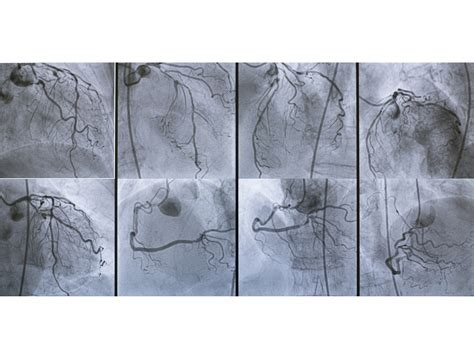 Complete Revascularization Superior to Culprit-Only