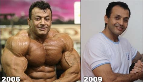 These Are Former Bodybuilders Who Lost Their Muscles